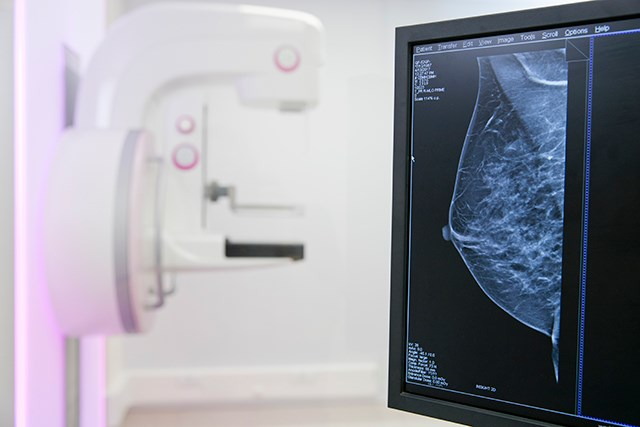Combined Digital Screening Best for Detecting Breast Cancers
