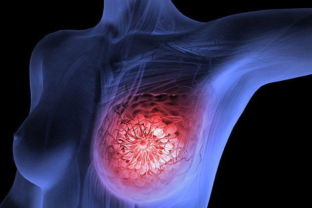 Various Factors Effect Risk for Interval Invasive Second Breast Cancers