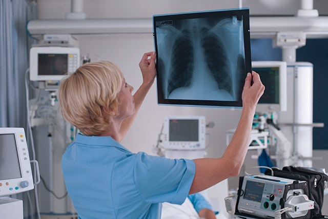 Lung Cancer Screening: Effective Models for Selecting the Most Candidates at Highest Risk
