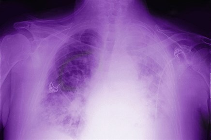 Evolving Role of Radiation Therapy in the Treatment of Mesothelioma