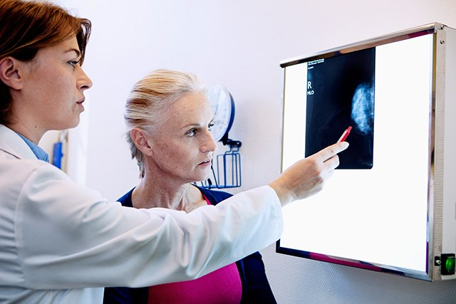 Second Opinion from Cancer Center Yielded Valuable Information for Breast Cancer Management