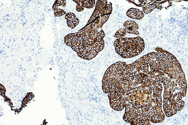Revised AJCC8 Demonstrates Superior Tumor Classification for HNCSCC