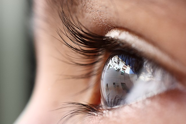 Long-term Impact of Retinoblastoma Therapy on Vision-Related Quality of Life