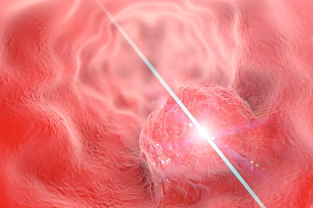 Low Level Laser Therapy May Prevent Oral Mucositis During HSCT Conditioning