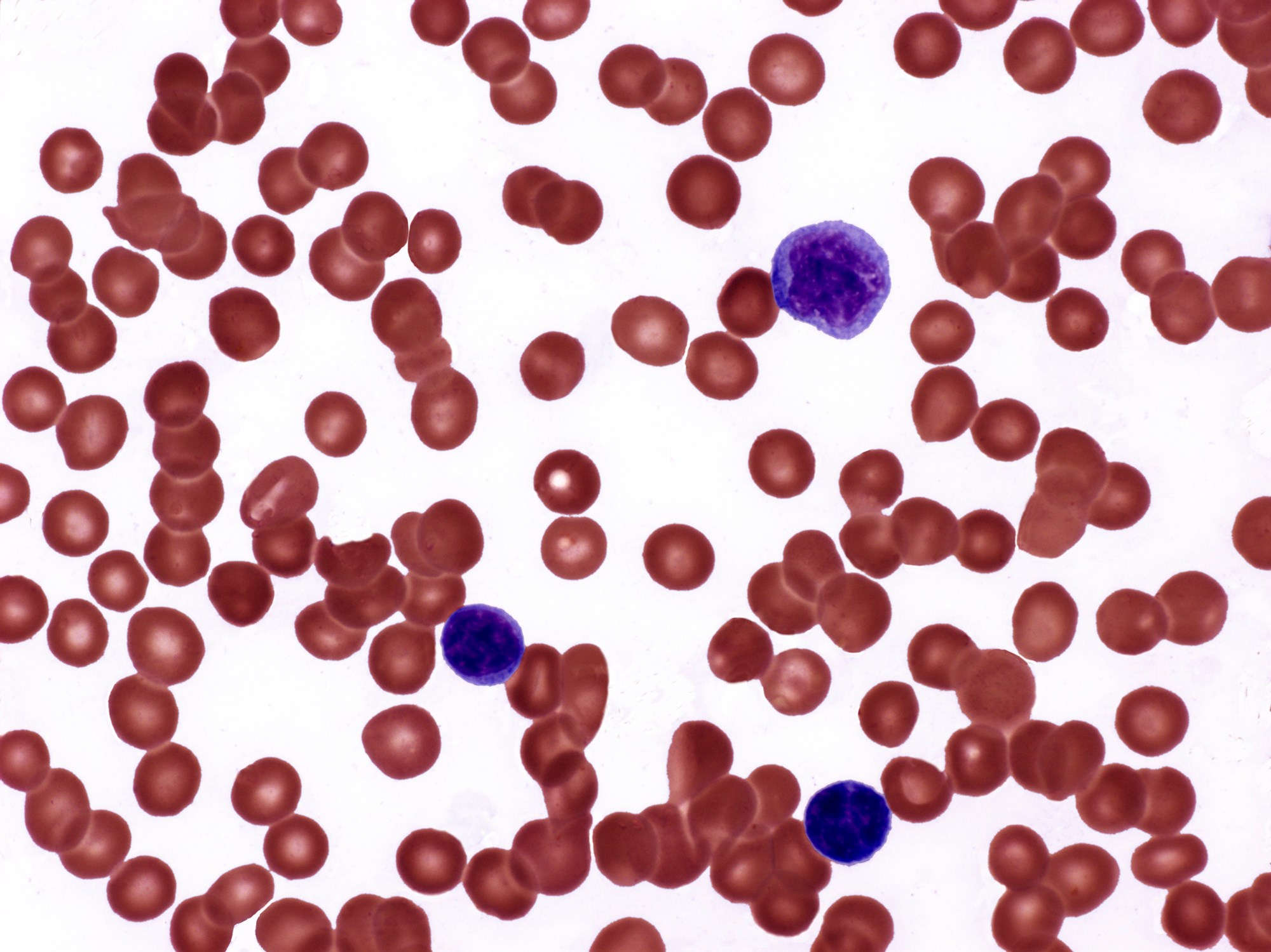 Light micrograph of a blood smear from a patient with polycythemia vera.