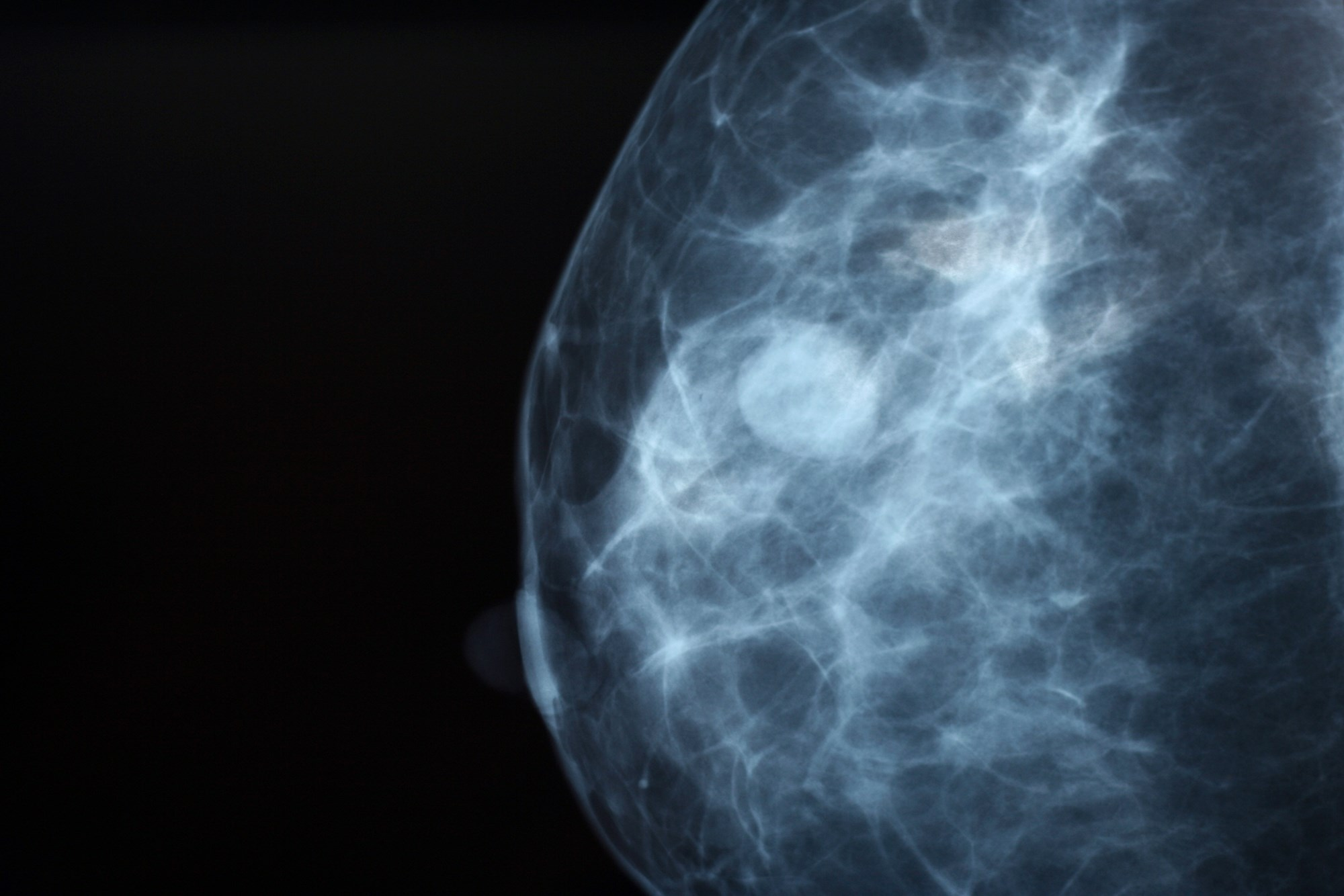 Should Increased Breast Density Dictate More Breast Cancer Screenings?