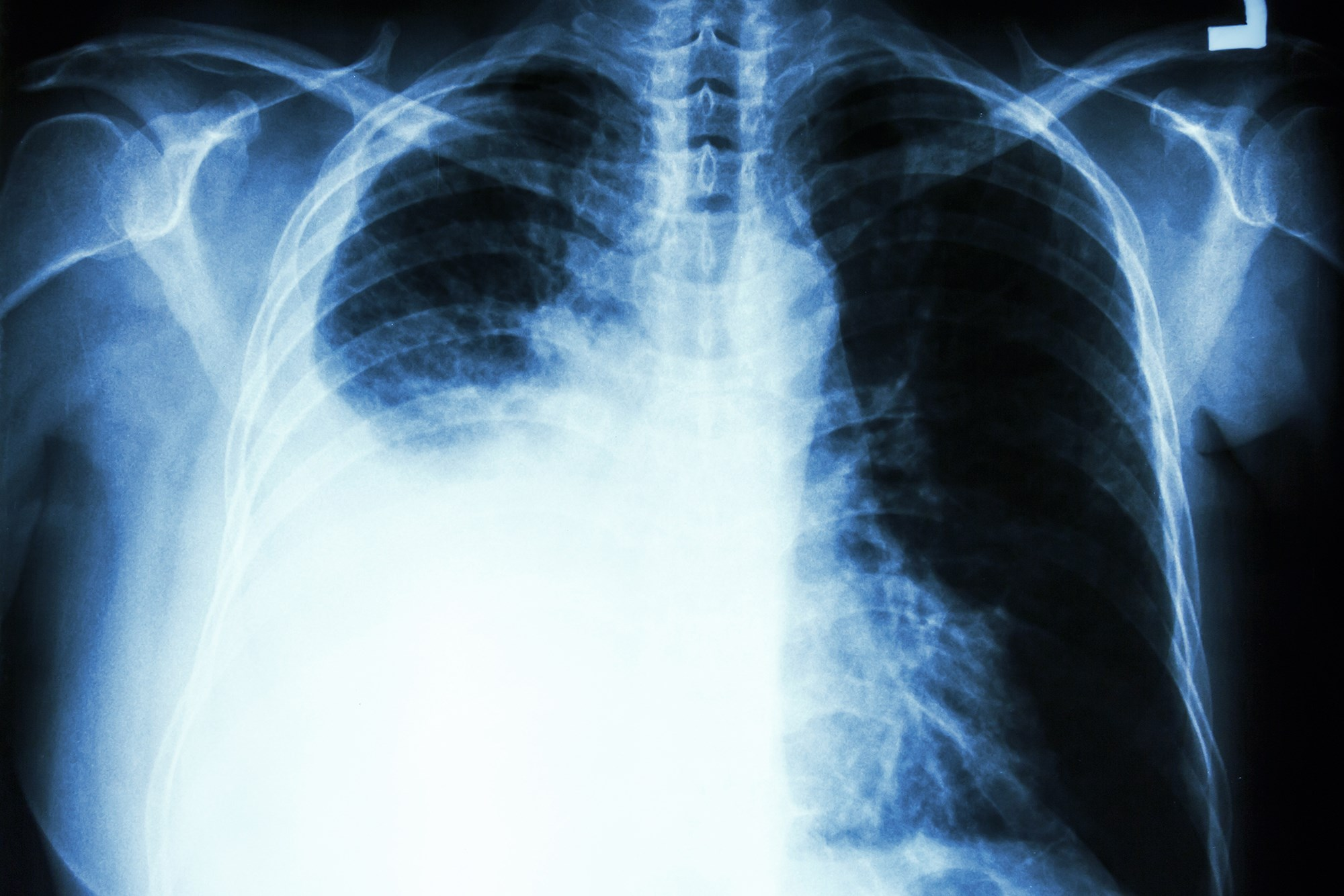 Malignant Pleural Effusion Interventions: What Matters Most to the Patient?