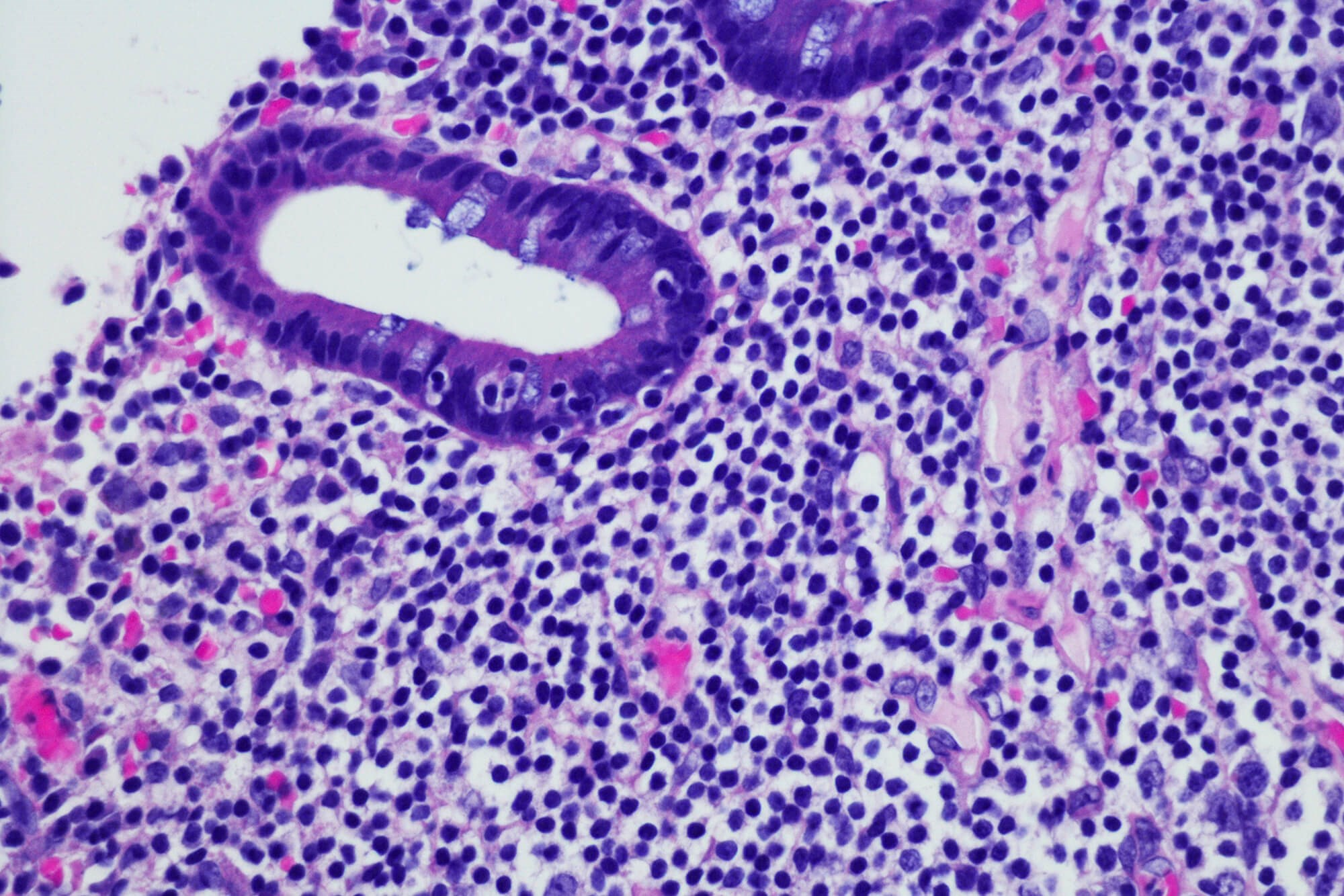 A subset of marginal zone lymphomas transform into higher-grade lymphomas.