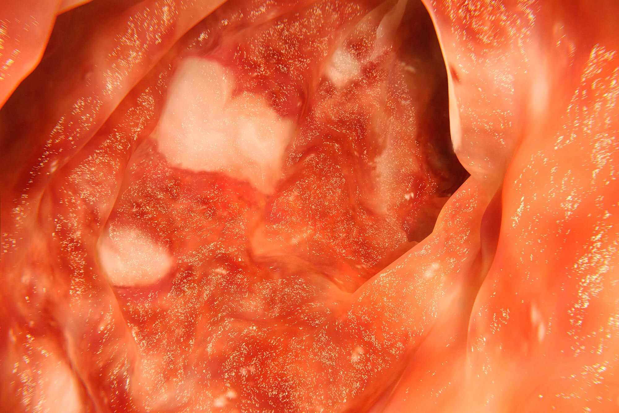 Immune checkpoint inhibitors are associated with potentially serious IRAEs, such as immune-mediated colon inflammation, or colitis.