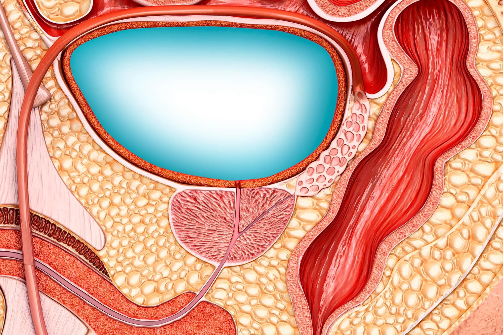 Overactive Bladder Linked to Prostate Cancer ADT