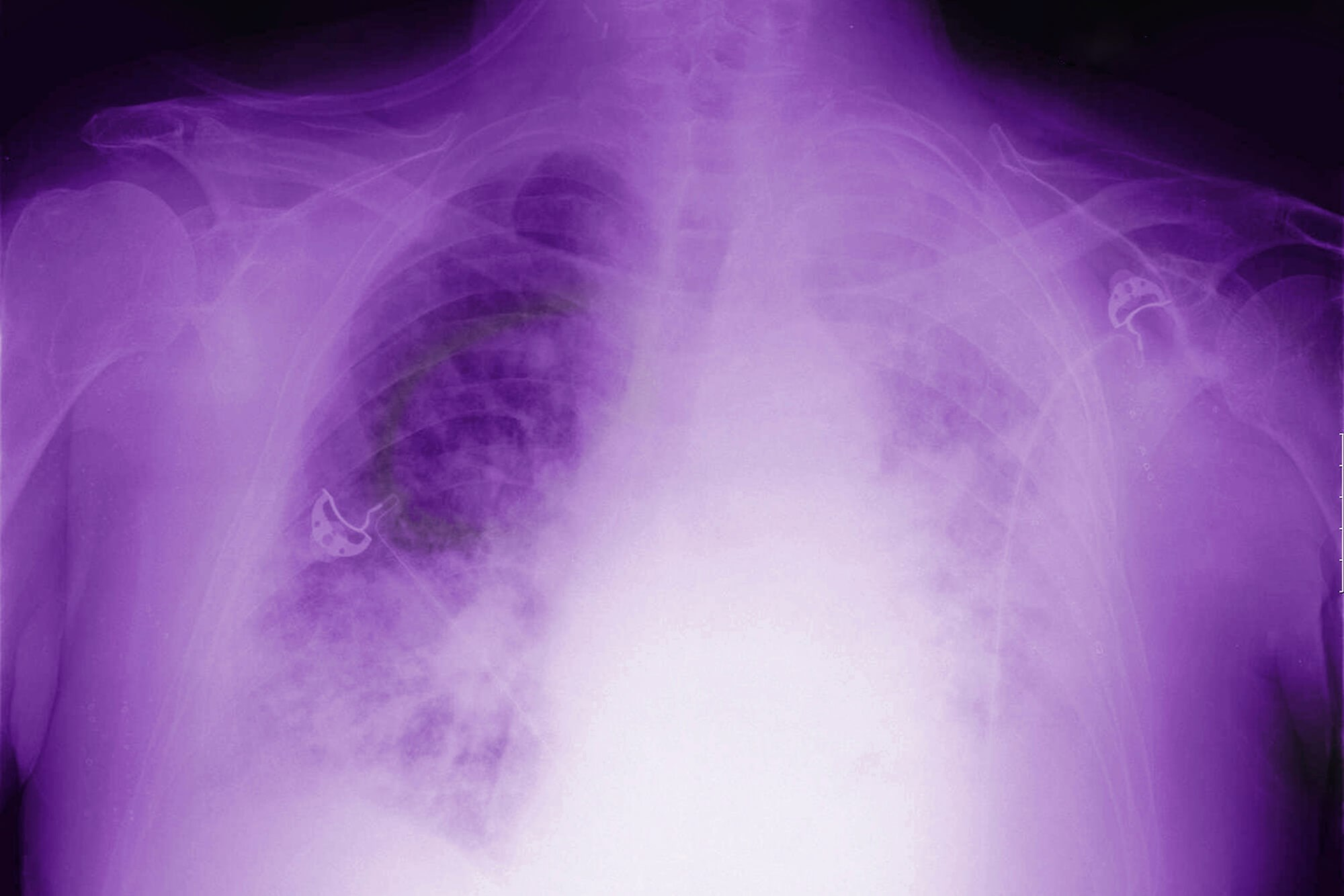 Healthcare Professionals Weigh In on Chemotherapy Use In Malignant Pleural Mesothelioma
