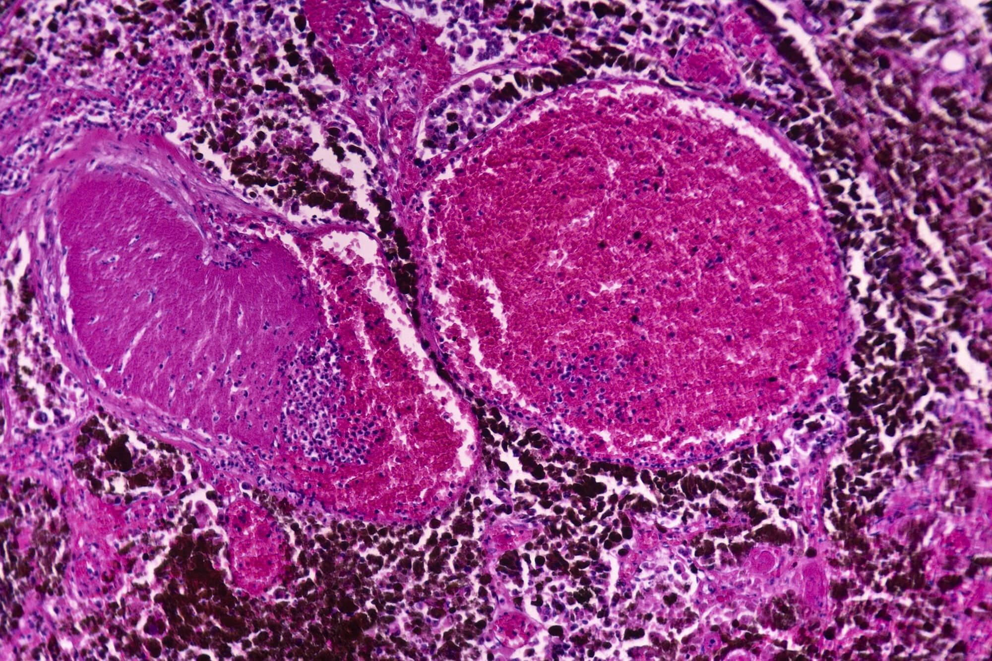 Sequential Immunotherapy, Targeted Therapy Linked to Cutaneous Adverse Events in Advanced Melanoma